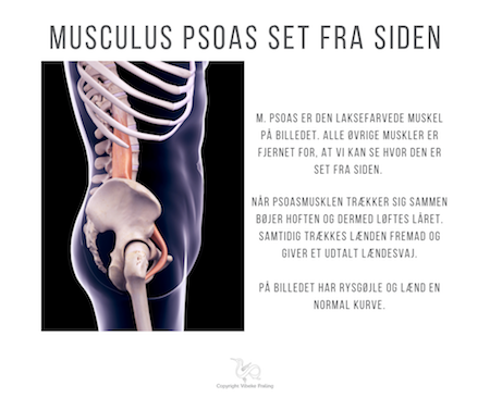 "Når musculus Psoas ""slår knuder"""